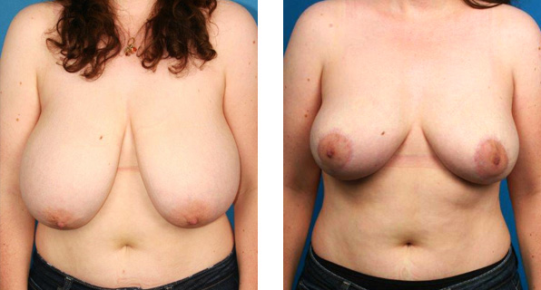 Breast Reduction and Lift Before and After